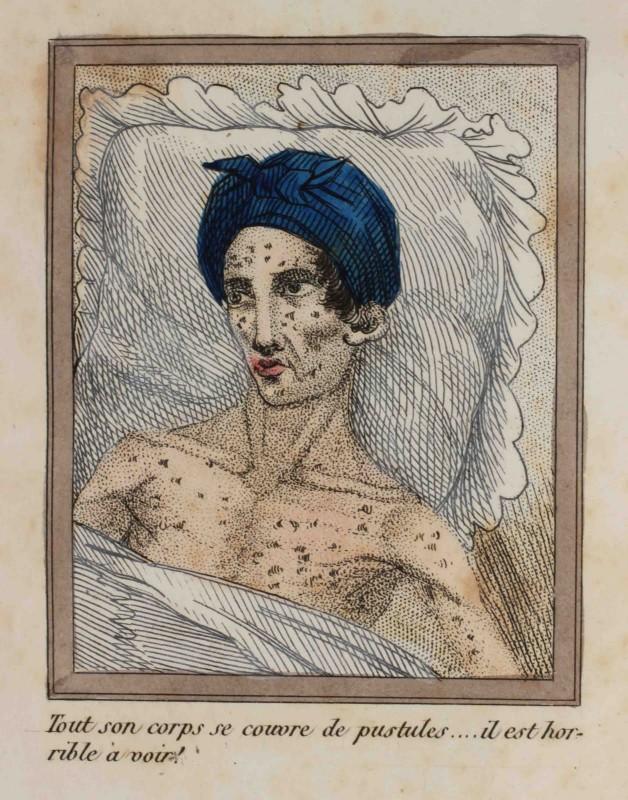livre sans titre 1830 danger masturbation 14 628x800 Le Livre Sans Titre, 1830   Les dangers de la masturbation