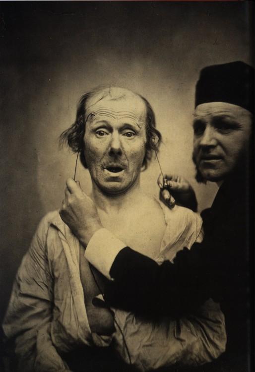 expression-visage-electricite-Duchenne-Boulogne-01